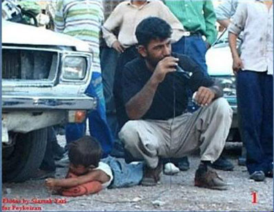 Iran boy arm under car wheel 1