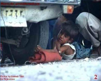 Iran boy arm under car wheel 2